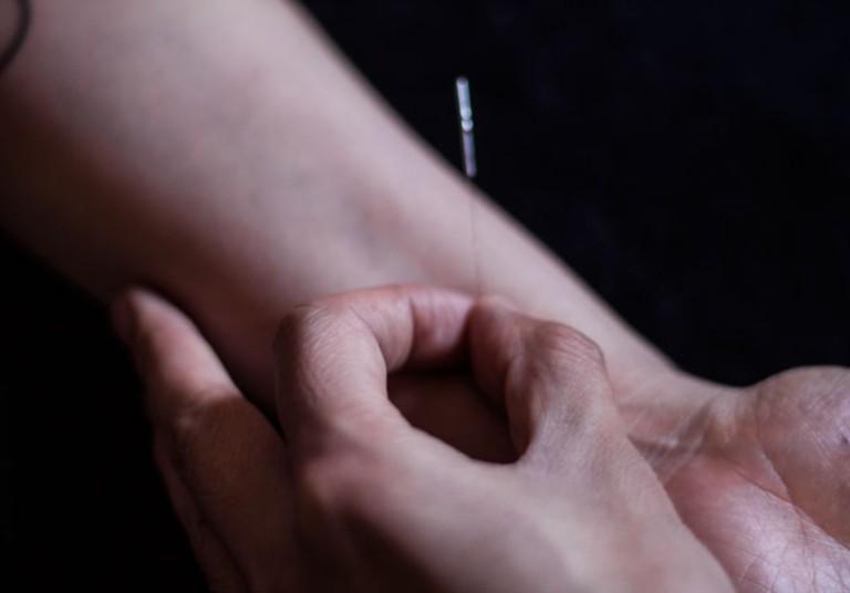 Komyuniti Wellness Acupuncture & Chinese Medicine